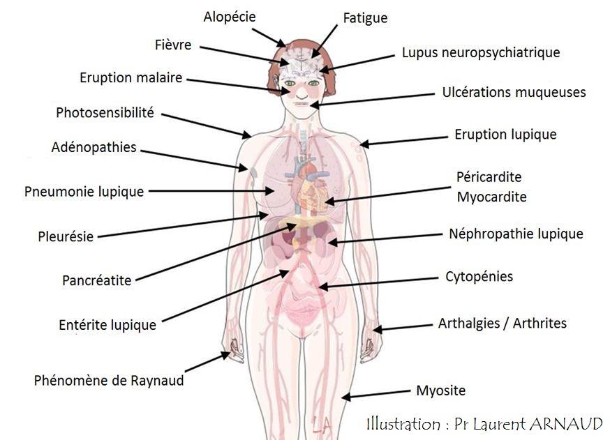 signes cliniques symptomes du lupus systémiques