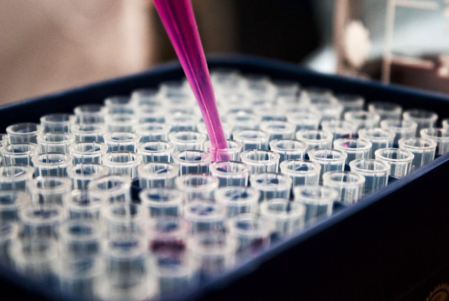 recherche scientifique maladie auto-immune