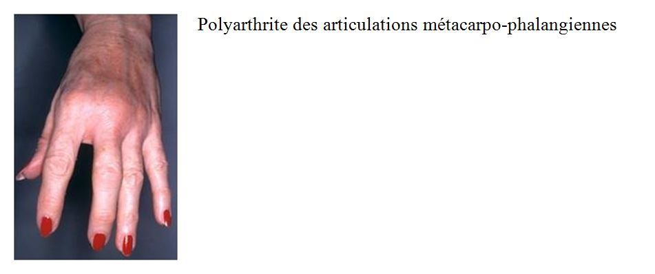 polyarthrite articulations myosites
