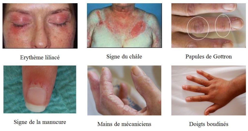 signes dermatologiques peau des myosites myopathies inflammatoires