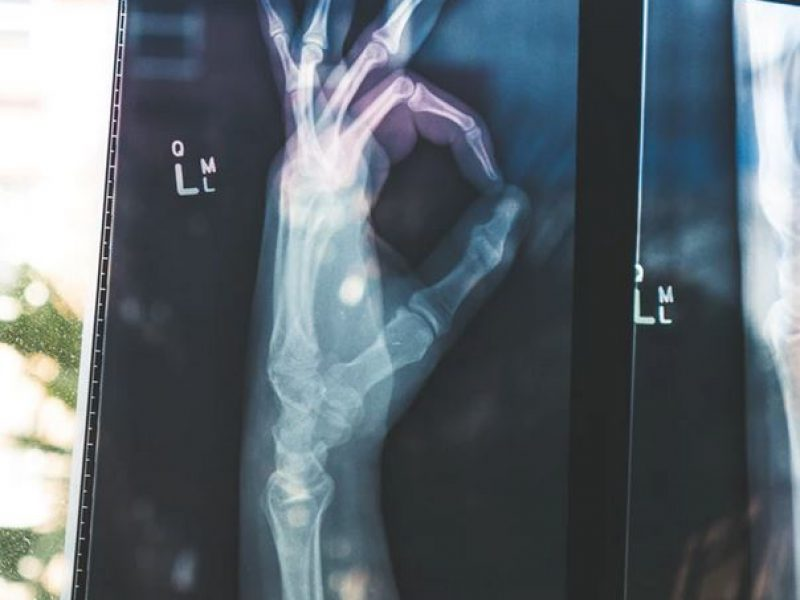 osteoporose maladie auto-immune